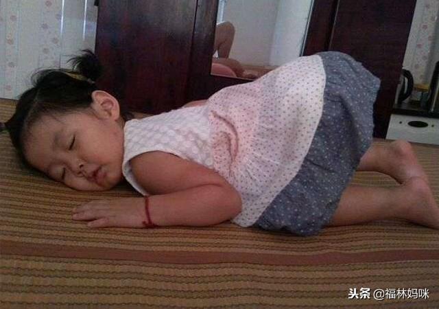 婴儿佝偻病睡姿图片