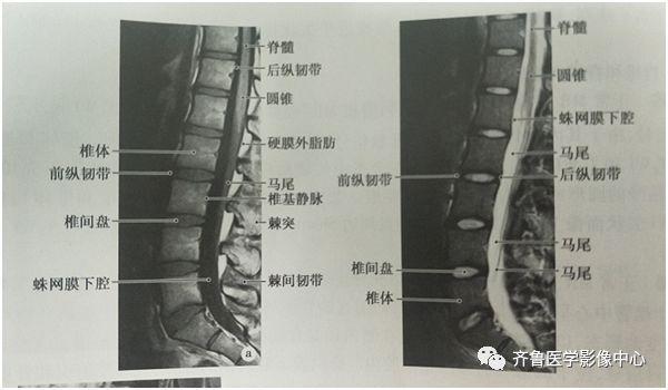脊柱的影像学诊断PPT课件- 豆丁网
