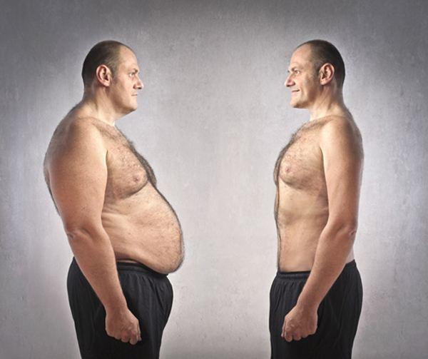 肚子皮下脂肪颗粒图片
