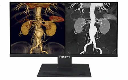 医疗设备显示屏_十年专注工业级显示屏_触摸屏