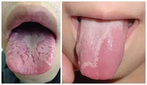 健康正常舌头根部图片