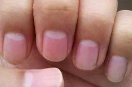 大指拇的指甲上长了竖纹 怎么回事(有图)