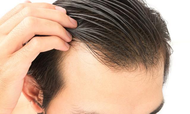 男人掉头发补救方法