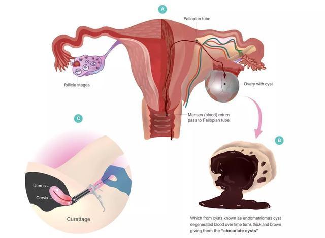 卵巢巧克力囊肿图片