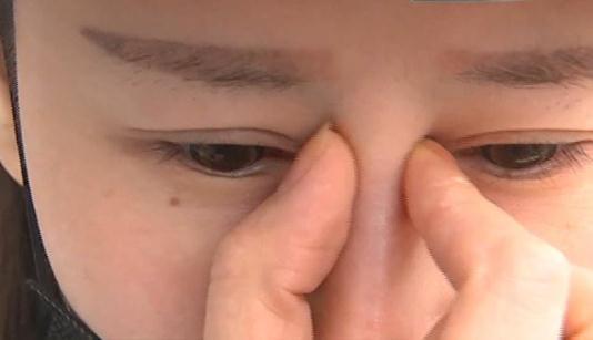 整鼻子前后对比照