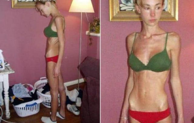 最瘦的女人图片厌食症