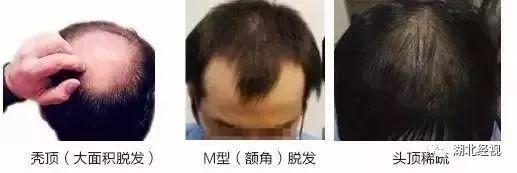 脂溢性脱发能长回来吗