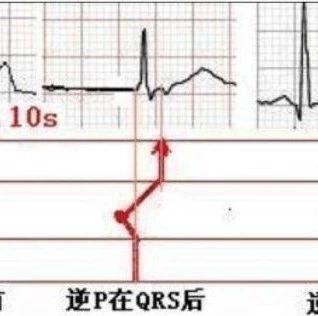窦性心动过速心电图