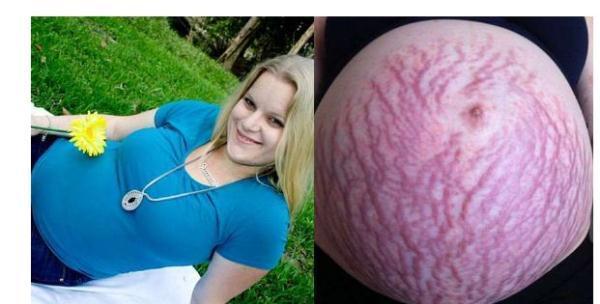 孕晚期肚子隐隐作痛