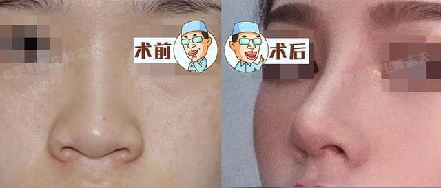 隆鼻真的有用吗?鼻综合术后六个月记录,这完全不是一个人!