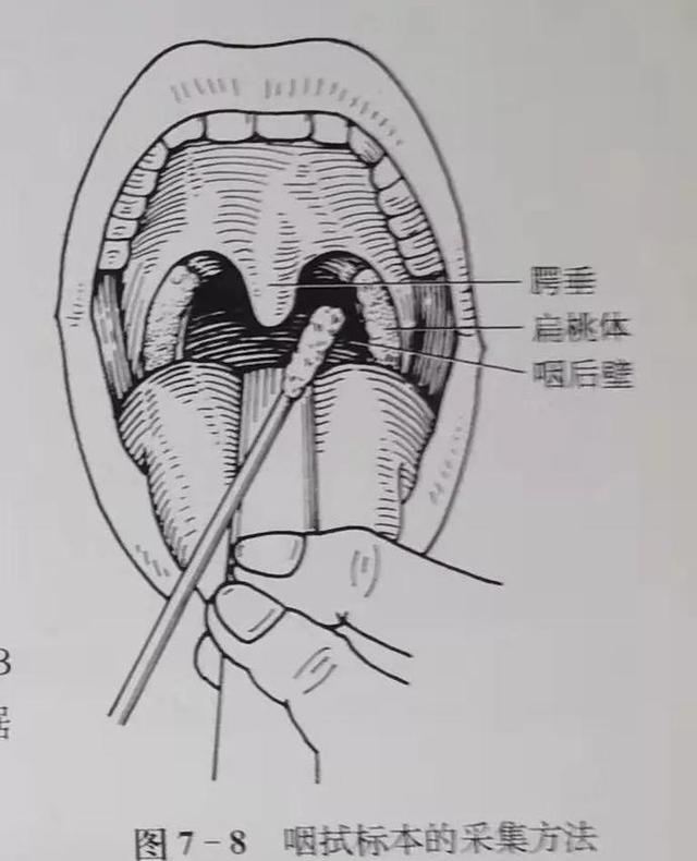 咽拭子标本采集图片