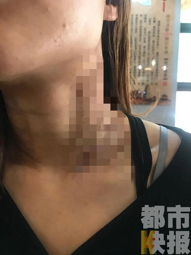 西安一女子去医美后竟成二度烫伤 美容医院:医生没掌握好