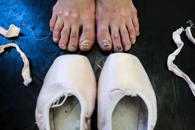 台上一分钟,台下十年功,看看芭蕾舞者的脚长什么样?伤痕累累!
