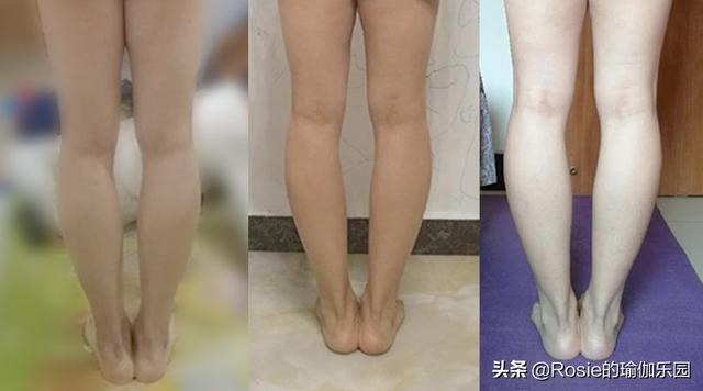 O型腿大腿粗壮,小腿疙瘩肉,穿路子太丑还膝盖痛?如何矫正?