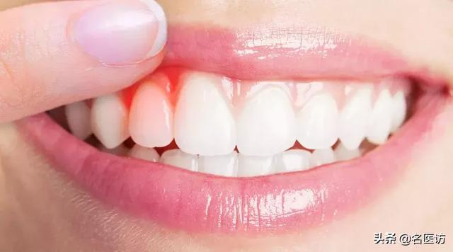 轻度牙龈萎缩图片