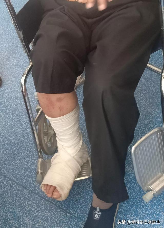 辟谣:骨折后打石膏要走路锻炼?小心二次骨折,康复要注意这几点