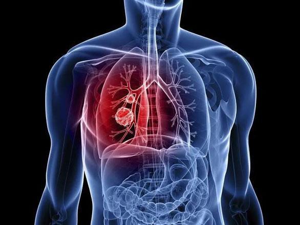 奥希替尼有望用于早期肺癌,还能让软脑膜转移者活得更久