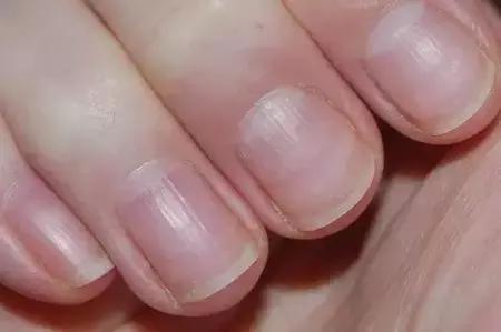 小孩指甲上有横纹图片详解 教你认识三个病因对症下药_手机网易网