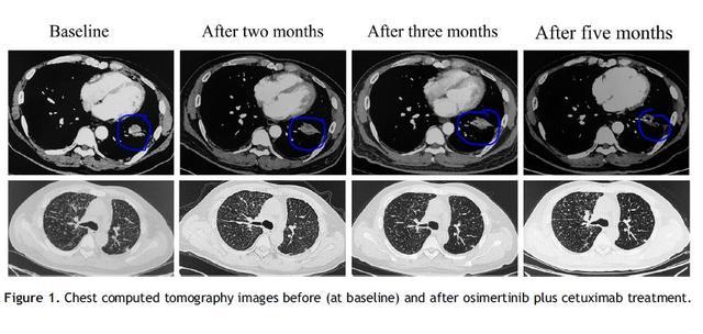 经典老药依旧好用,肺癌和结直肠患者耐药困境,用这个解药