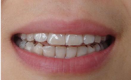 牙齿矫正对比图