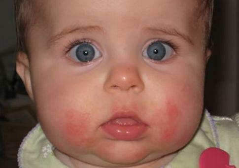 慢性湿疹是什么样子的