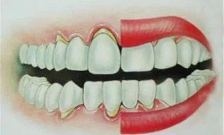 牙龈萎缩图片及症状