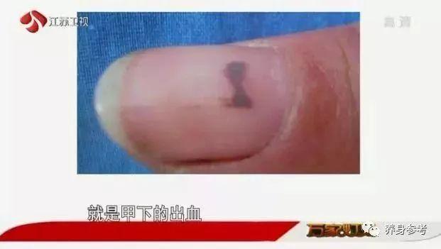 指甲上有黑线是癌症吗,哪种指甲黑线代表癌症-乐哈健康网