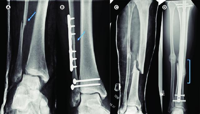 杨阔未伤胫骨属不幸中的万幸 腓骨骨折可采用保守疗法
