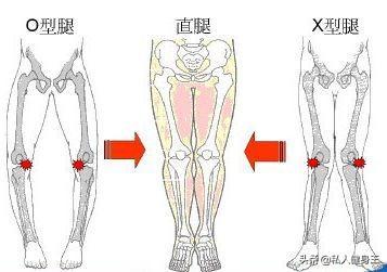 """很多人都有""""O型腿"""",只是你没发现,快来自检一下,教你改善"""
