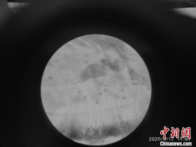 """""""水中大熊猫""""桃花水母现身云南 有6亿年生存历史"""
