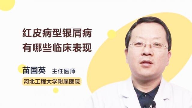 红皮病型银屑病有哪些临床表现?听听医生怎么说