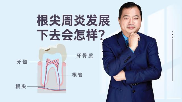 牙根尖囊肿晚期症状