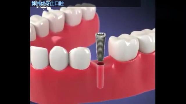 单个牙齿烤瓷牙图片