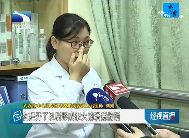 鼻子长肿瘤图片