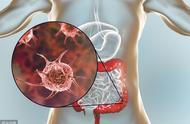 肛门出血,元凶有4个,最怕是结肠癌前期息肉,出现5种症状早查