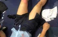 受伤香港警员对暴徒喊话:我们香港警察绝对会果断执法
