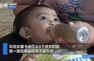 印尼父母没钱买牛奶 每天喂14月大婴儿喝5杯咖啡