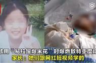 女孩模仿短视频自制爆米花,被重度烧伤