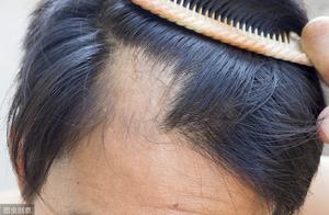 脱发谢顶别只怪遗传,元凶还有这8种,搞定它们,秀发重现