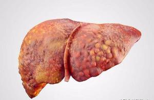 体检查出了脂肪肝,我该怎么办?