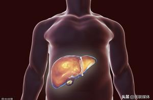 身体存在这5个问题,多是肝脏受伤了,得及时解决