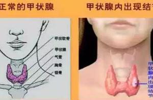 """甲状腺结节手术泛滥!良性结节率95%,多数""""开了不该开的刀"""""""