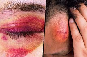 皮肤容易出现青紫淤伤,不一定是体质问题,4种大病是元凶