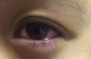 可怕!12岁女孩突然失明!元凶很多江阴人家里都有!