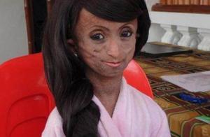 19岁少女患早衰症,皮肤松弛不堪,犹如150岁老奶奶!