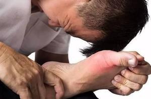 严重并发症竟源于不合理使用止痛剂?三招教你如何正确选择痛风止痛药