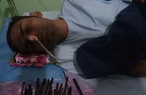 印度一男子腹痛 医生从其腹中取出30余件利器