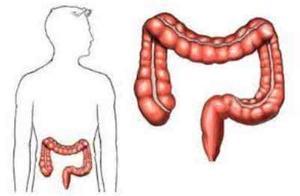 央视主持人肖晓琳患肿瘤离世,吃什么最容易患肠癌?该如何预防?