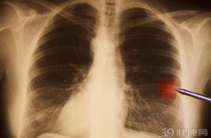 """肿瘤医生总结:治癌""""遇到""""副作用,有5个应对方法"""