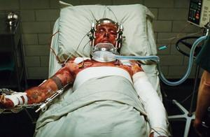 无敌浩克:士兵重伤濒临死亡,竟突然痊愈,真是个奇迹!